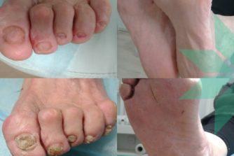подолог смарт медикал центр ногти на ногах до после
